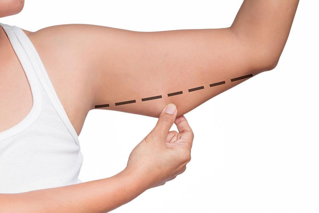comment mincir des bras